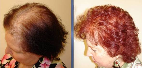 Women Hair Transplant Before and After - Video Testimonial